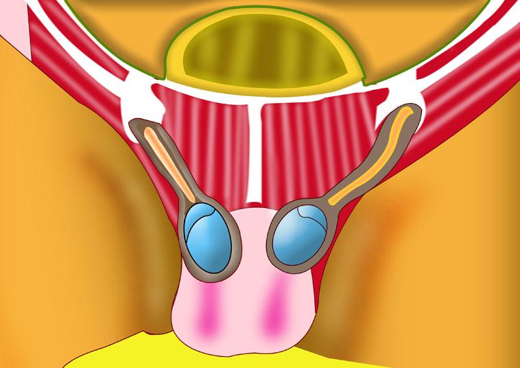 Laparoscopic Umbilical Hernia Repair | Orange County Surgeons
