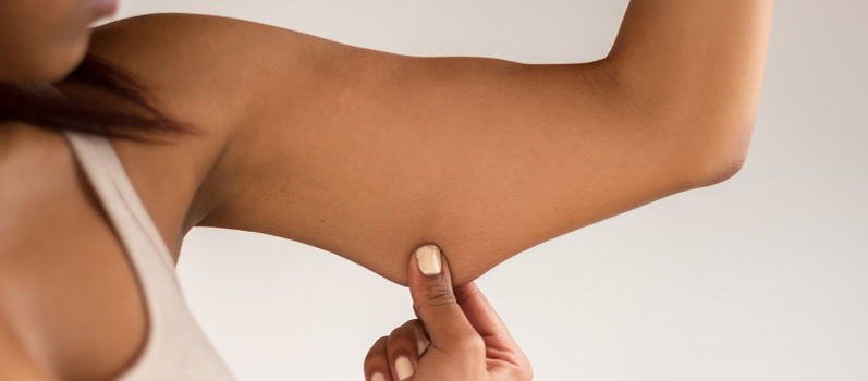 Exercising To Combat Loose Skin After Weight Loss Orange County