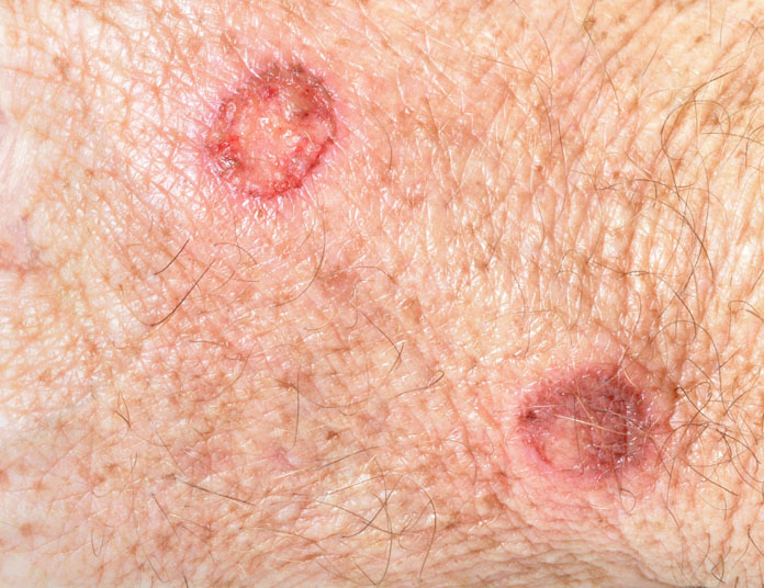Cryosurgery for Skin Cancer | Orange County Surgeons