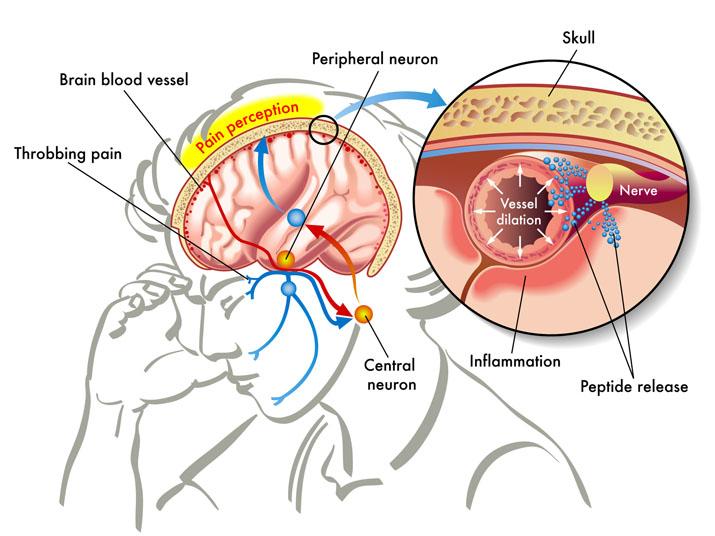 Novel Breakthrough Migraine Drug Halves Length of Attacks