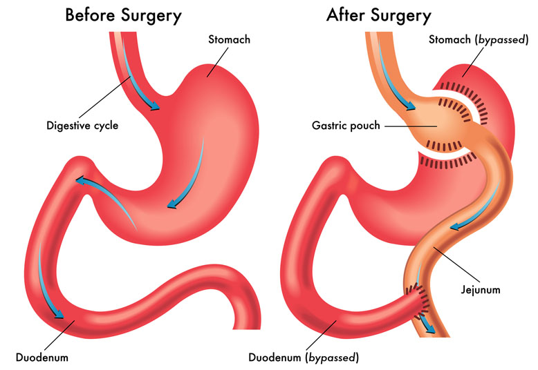 Gastric Bypass Surgery | Orange County Surgeons