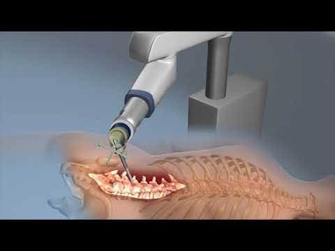 Innovation In Robotic Surgery