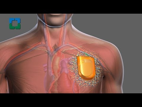 Study Aims To Further Reduce Cardiac Device Infections