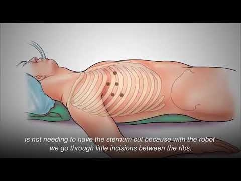 Robotically Assisted Heart Surgery
