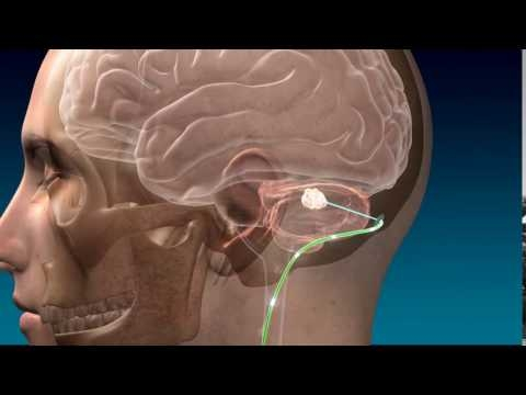 Deep Brain Stimulation For Stroke Recovery Animation