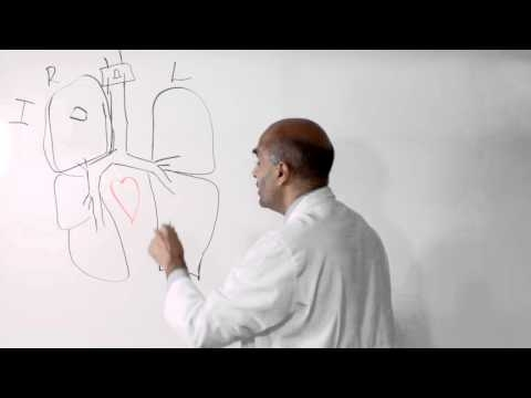 Stage 1 And Stage 2 Lung Cancer