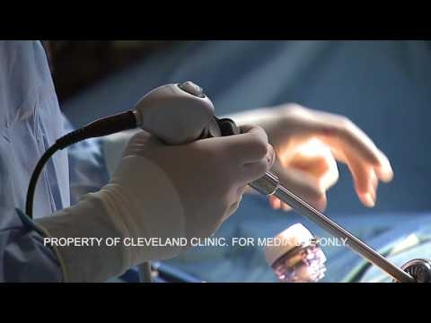 Study: Surgery Is Effective Tool For Diabetes Control