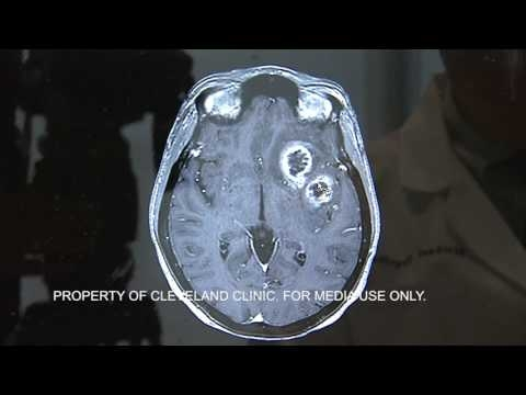 What Is Glioblastoma?