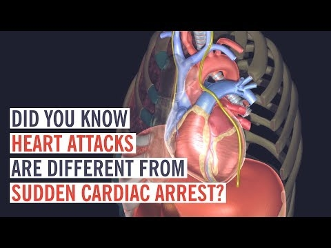 What Happens In A Heart Attack vs. Cardiac Arrest?