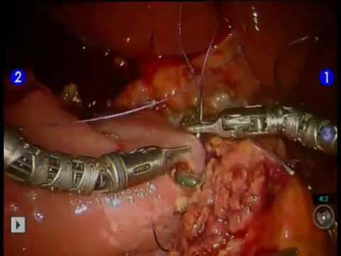 Pylorus-Preserving Pancreaticuduodenectomy: An Instructional Look