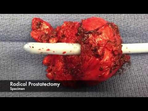 Robotics And The Perineal Approach To Radical Prostatectomy