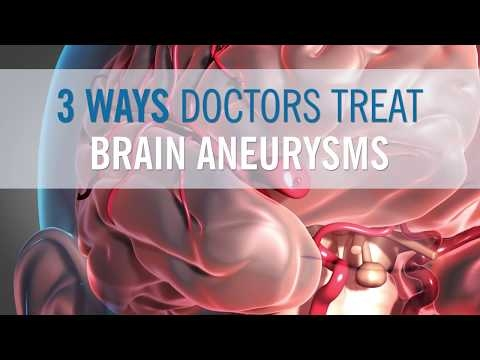 3 Ways Doctors Can Treat Your Brain Aneurysm