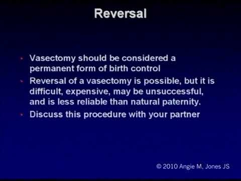 Benefits Of Percutaneous No Scalpel Vasectomy