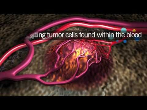 Liquid Biopsies To Find Circulating Tumor DNA