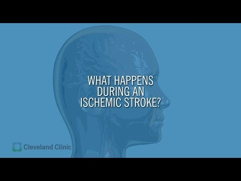 What Happens During An Ischemic Stroke