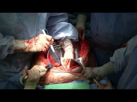 Repair of Recurrent Subxiphoid Hernia