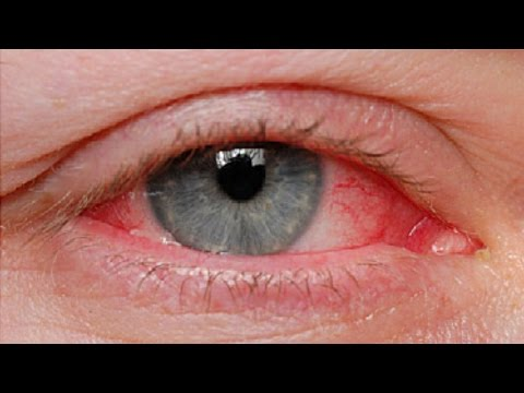 Pinkeye Causes and Treatments