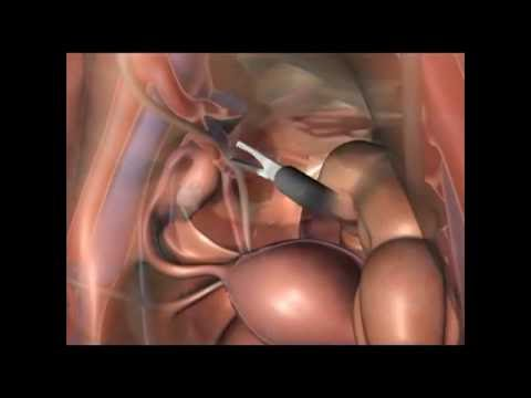 The Retroperitoneal Approach To Endometriosis: Anatomical Considerations