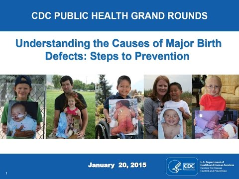 Understanding the Causes of Major Birth Defects: Steps to Prevention