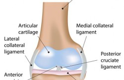 Knee Repair Surgery – Arthroscopic ACL Meniscal Repair