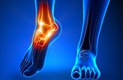 Arthroscopic Ankle Synovectomy