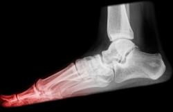 Arthroscopic Toe Fusion
