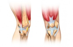 Arthroscopic Total Knee Replacement