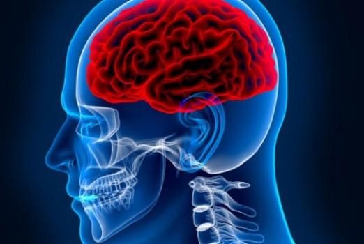 Brain Surgery – Craniotomy