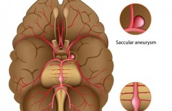 Cerebral Aneurysm Repair by Occlusion and Bypass