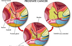 Low Dose Rate Brachytherapy for Prostate Cancer
