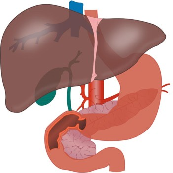 Laparoscopic Wedge Resection of the Liver