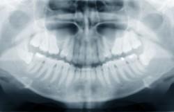 Maxillary Labial Frenectomy