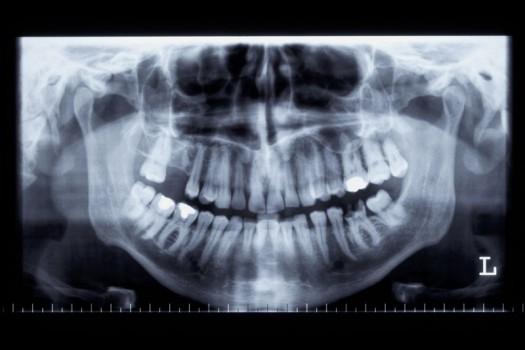 Le Fort II Osteotomy