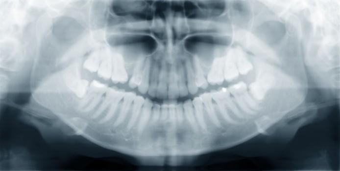Le Fort III Osteotomy