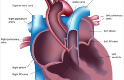 Left Ventricular Assist Device Placement