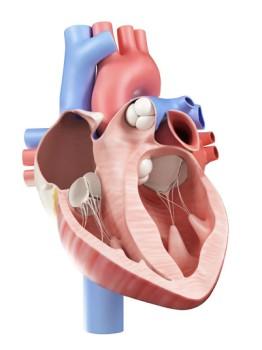 Minimally Invasive Pulmonary Artery Valve Repair