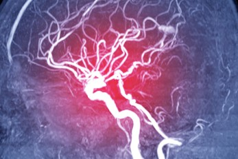 Brain Aneurysms & What to Watch For