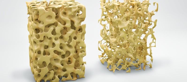 Osteoporosis Warning Signs