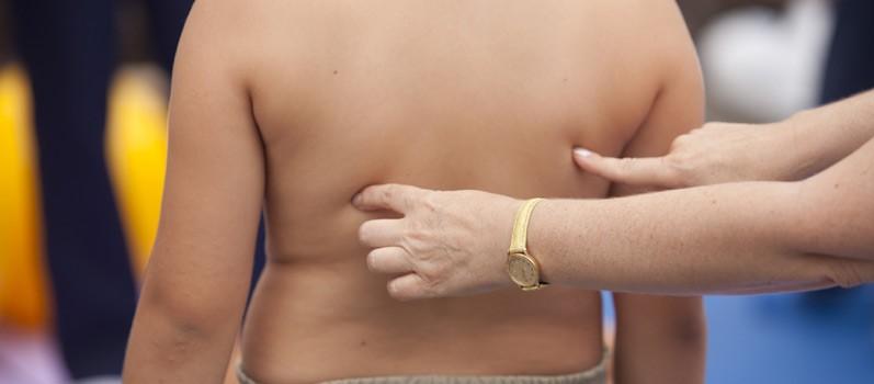 Alarming Rates of Childhood Obesity