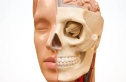 Monobloc Osteotomy