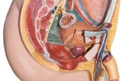 Open Inguinal-Femoral Hernia Repair