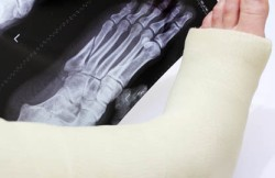 Open Reduction and Internal Fixation of a Foot Fracture