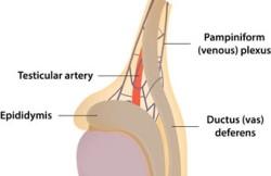 Orchioplasty