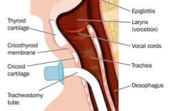 Panendoscopy