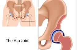 Pelvic Osteotomy