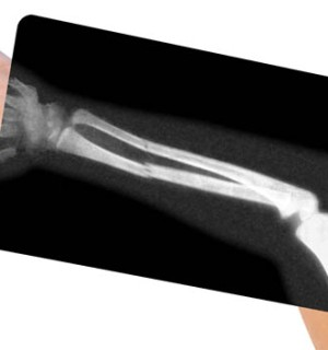 Plate and Screw Fixation of the Arm Bones