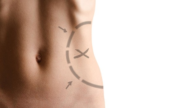 Abdominal Liposuction