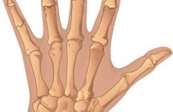 Wrist Fusion