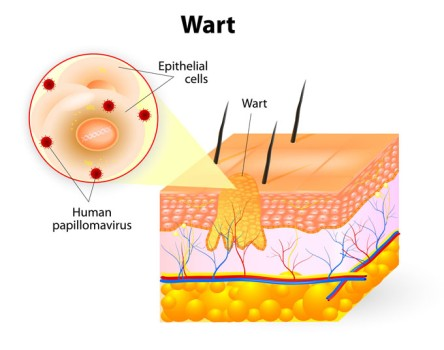 Wart Removal by Laser Therapy