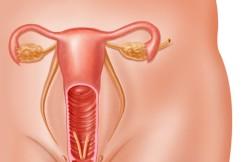 Vulvectomy